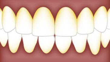 dentista placa dental